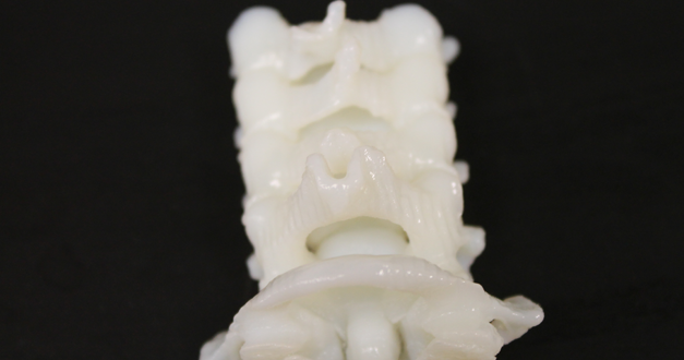 3D Articulated Spine