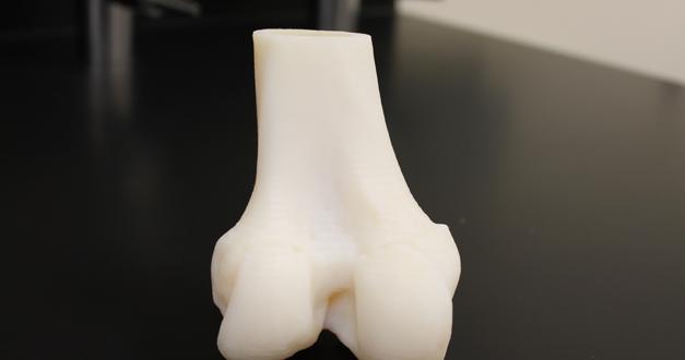 3D Knee Model