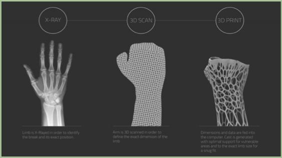 3D Hand Scan